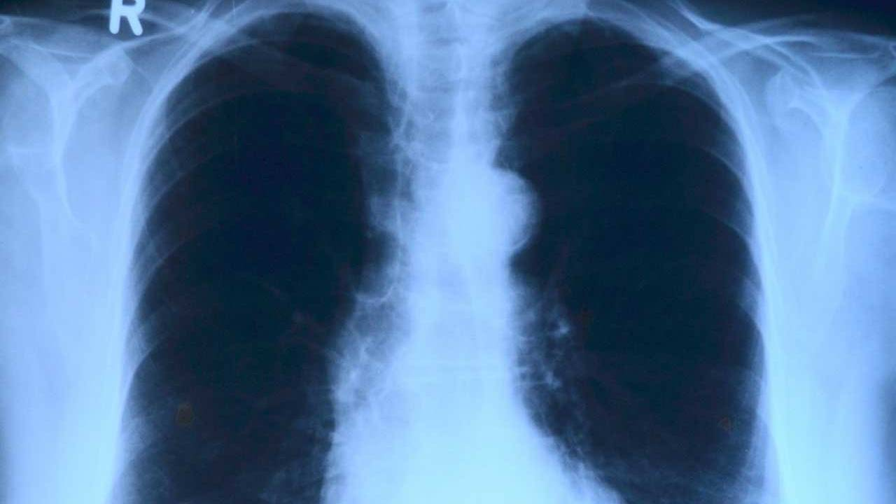 Yale researchers have created a blueprint of the human lung